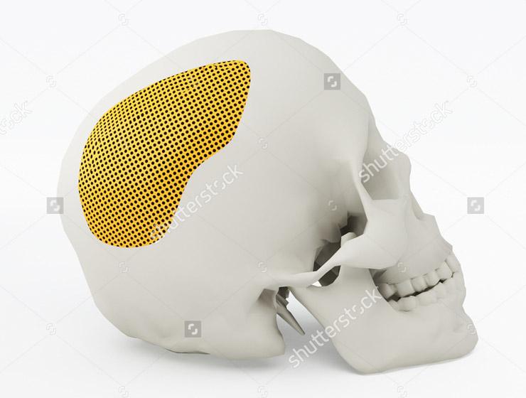 implante_medida-1 Servicios